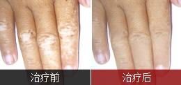 手部白癜风康复案例